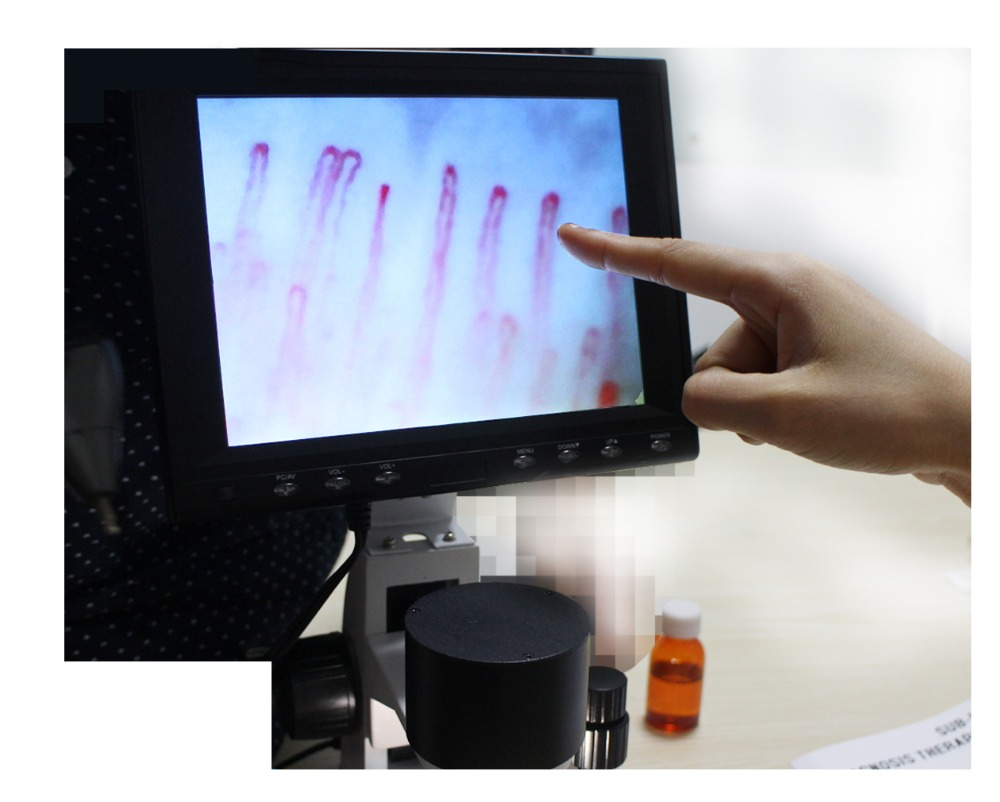 8 inch video detection instrument Microcirculation diagnosis microscope