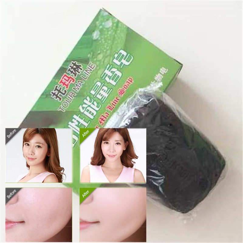 Soaps For Acne Treatment, 1Pcs Bamboo Charcoal Dispel Blain And Do Not Leave Scar Nature Plant Soap For Skin Care 60g/pcs