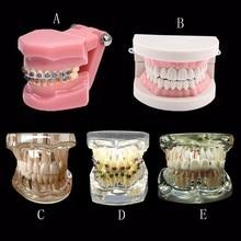 Различные стоматологические модели зубов используются для обучения и больничных стоматологов
