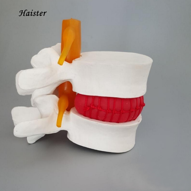 1 unid Cuerpo Humano modelo de demostración de hernia de disco ...