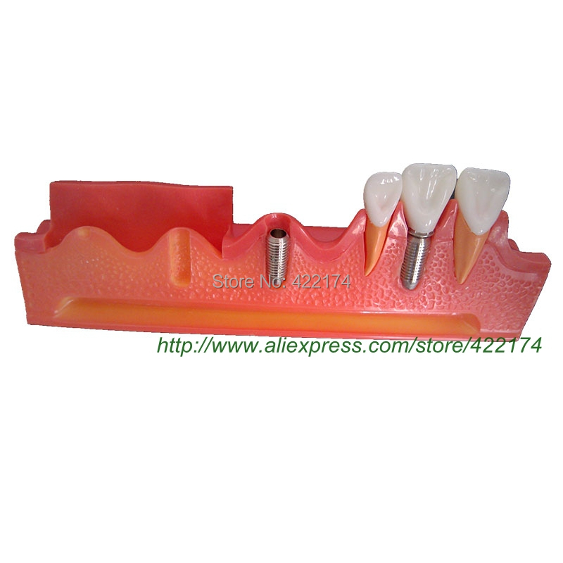 Free Shipping Implant demonstration model dental tooth teeth dentist anatomical anatomy model odontologia new arrival high quality dental implant demonstration bracket simulation teeth model teeth removable