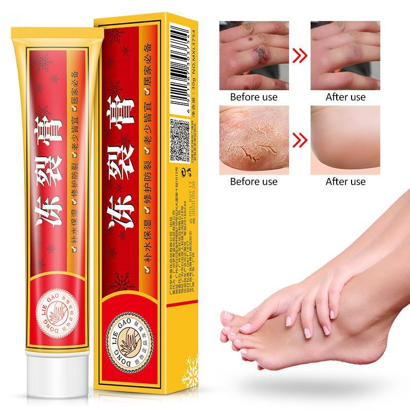 Powerful Hand Foot Crack Cream Heel Chapped Peeling Foot and Hand Repair Anti Chapping Wrinkle Treatment Skin Cracking Care U00