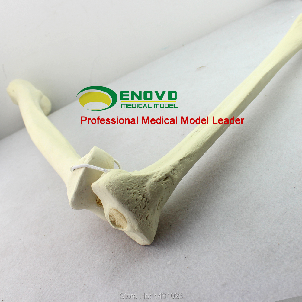 ENOVO The bone model of the femoral tibial model was implanted into the cortical bone prediction of bone length from bone fragments