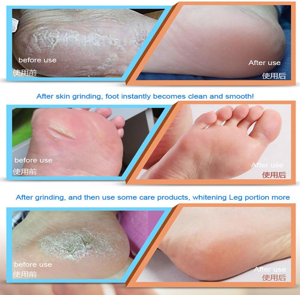 Pés Pedicure Cuidados Pessoais Foot Arquivo Elétrica