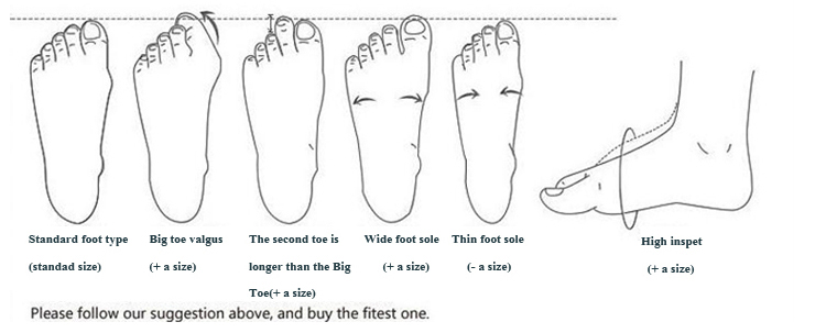 foot type -2