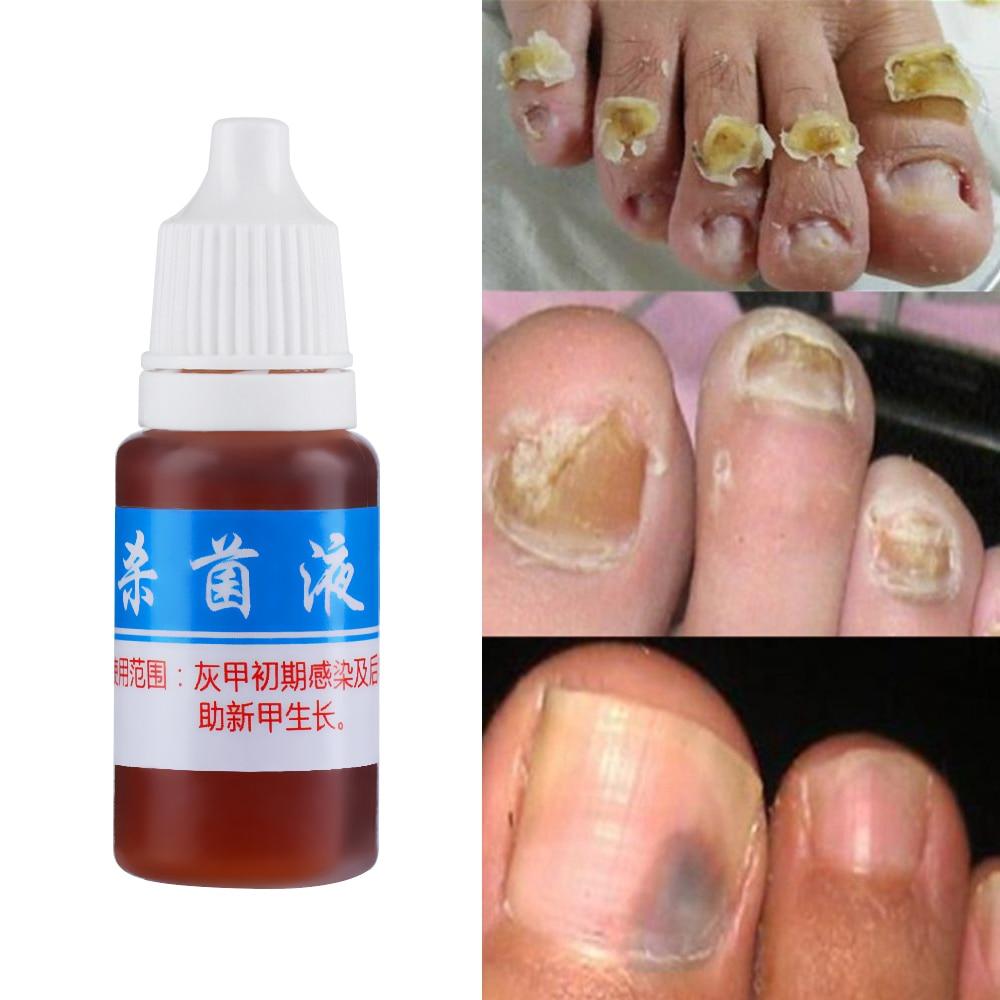 1 Bottle 5ml Fungal Nail Treatment Liquid Bright Nail Repair Onychomycosis Removal Essence Anti Infection Foot finger Care Онихомикоз