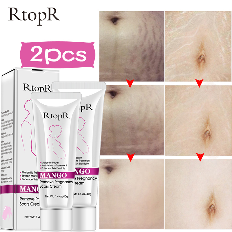 Mango Stretch Marks Repair Cream Remove Pregnancy Scars Acne