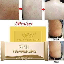 5 шт. Сера мыло добавить крем от псориаза дерматит Eczematoid экзема мазь лечение кожи псориаз