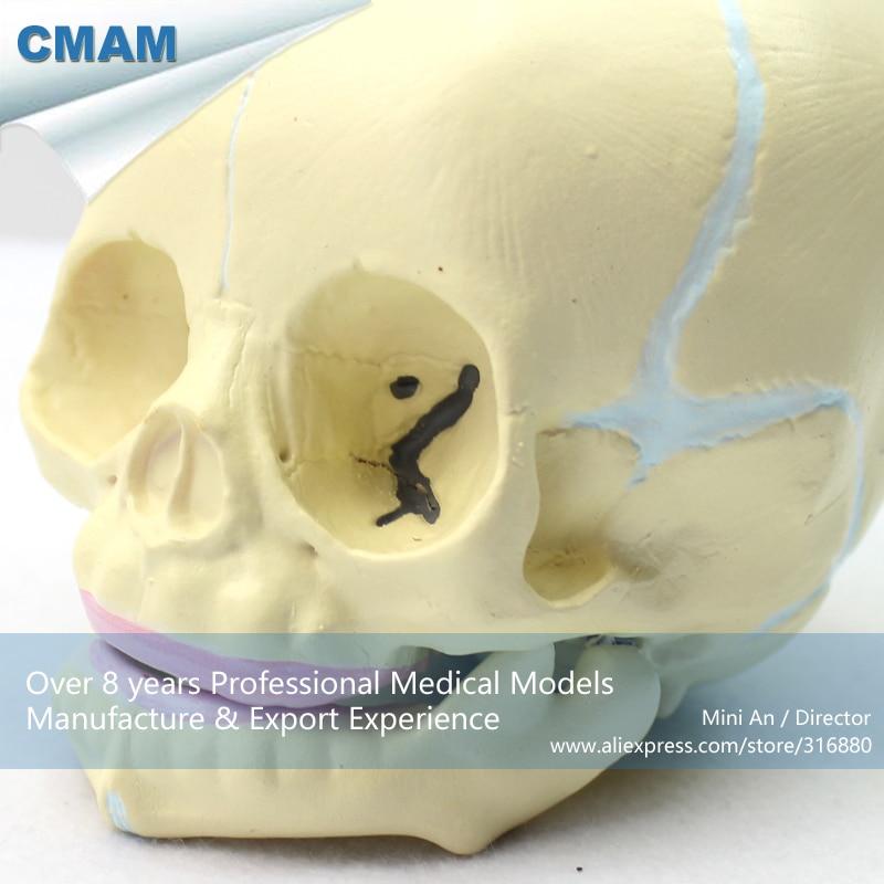 12330 Cmam Skull04 Human Skeleton Fetal Skull Baby Infant Anatomy