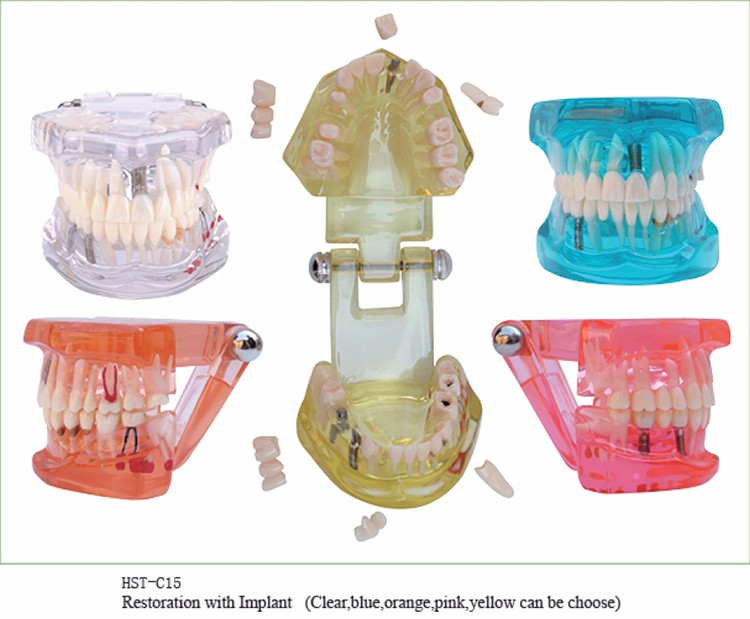 1 PC modèle de dents de maladie d'implant dentaire avec le dentiste de dent de pont de restauration pour le modèle de formation et d'enseignement de dentiste médical