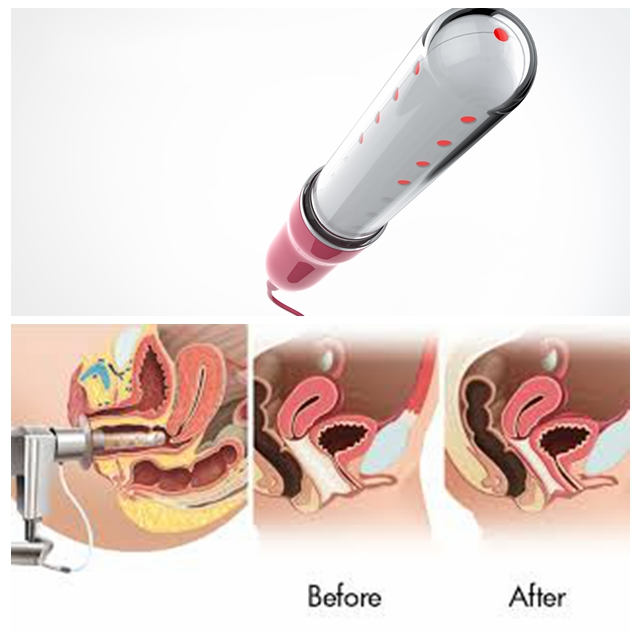 The newest  650 nm laser light  woman gynaecology light therapy device for woman usewoman gynaecology light therapy device home use red laser light therapy device for the old aged healthcare