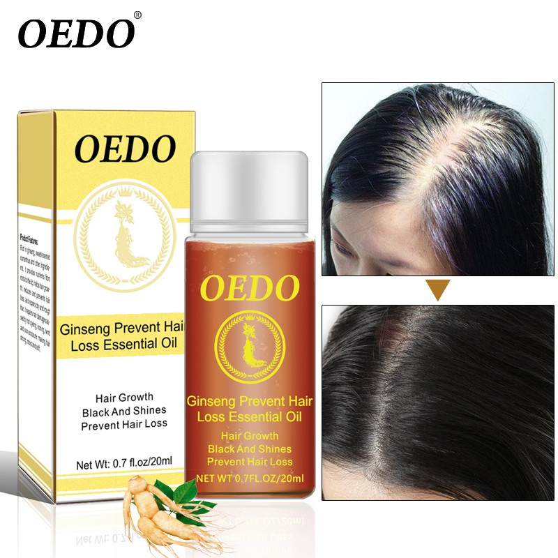 20ml Ginseng Hair Growth Products Faster Grow Prevent Hair Loss Treatments Thick