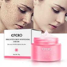 Whitening Face Cream Retinol Freckles Age Spots Skin Strong Effect Dark Melasma Lightening Lip