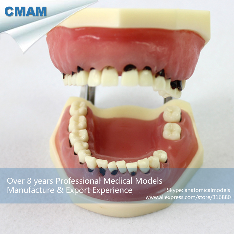 12610 CMAM-DENTAL28 Severe Periodontal Disease Jaw Model for Periodontal Surgery Training effect of dental implant abutment connections on periodontal tissues