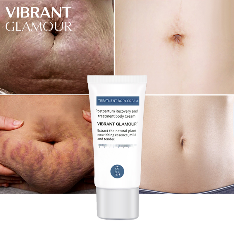 Crocodile Stretch Marks Remover Pregnancy Scars Ance Cream Maternity Repair Anti Aging Winkles Firming Care