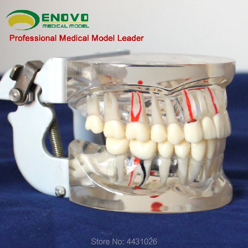 ENOVO A demonstration model of dental caries for dental model of dental model with transparent adult comprehensive oral patholog transparent dental orthodontic mallocclusion model with brackets archwire buccal tube tooth extraction for patient communication