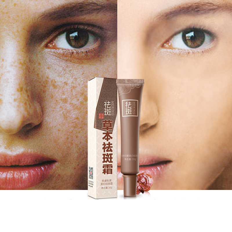 Strong Effects Powerful Whitening Freckle Cream Removal Serum Reduces Age Spots Freckle Melasma Cream Blemish Moisturizing Cream