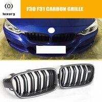 M3 Стиль углеродного волокна + ABS спереди почек гриль решетки для BMW F30 F31 320i 328i 335i 328d седан и универсал (не может поместиться F34 GT)