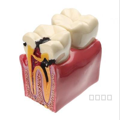 6 times teeth model caries contrast  teaching model free shopping6 times teeth model caries contrast  teaching model free shopping