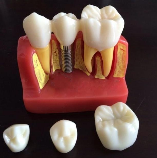 Alta calidad dentista implante enfermedades modelo de análisis corona puente demostración modelo Dental