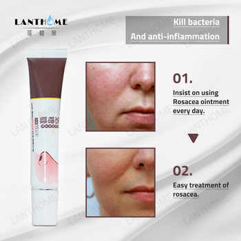 2pcs Herbal Anti Nose Mites Remove Acne Rosacea Cream Red Nose Ointment Blackhead Remover Treatment Shrink Pores Face Bleaching