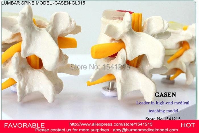 MEDICAL LUMBAR SPINE MEDICAL HUMAN BODY HUMAN ANATOMY LUMBAR MODEL INTERVERTEBRAL DISC ORTHOPEDICS SKELETON MODEL -GASEN-GL015