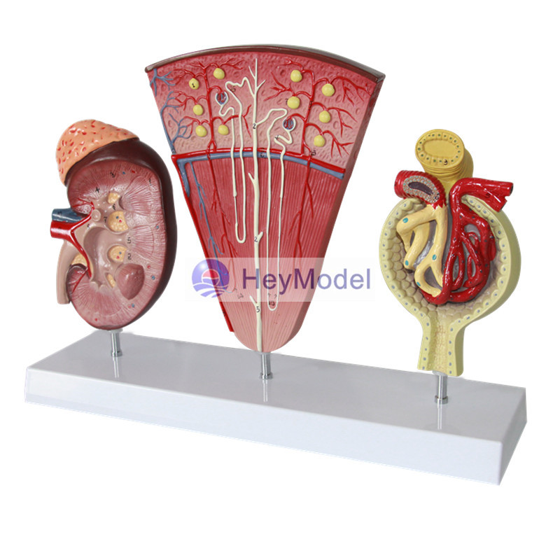 HeyModel Cecum and appendix model ileum model Lymphatic and Gastrointestinal Teaching Model Intestinal model iso anatomical model of appendix and caecum human appendix