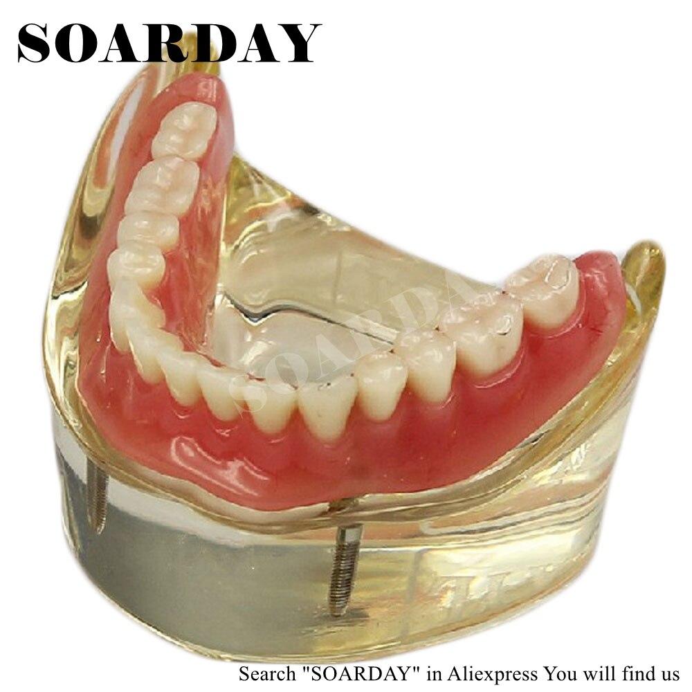 SOARDAY Dental Inferior extraíble sobredentadura Inferior con 2 ...
