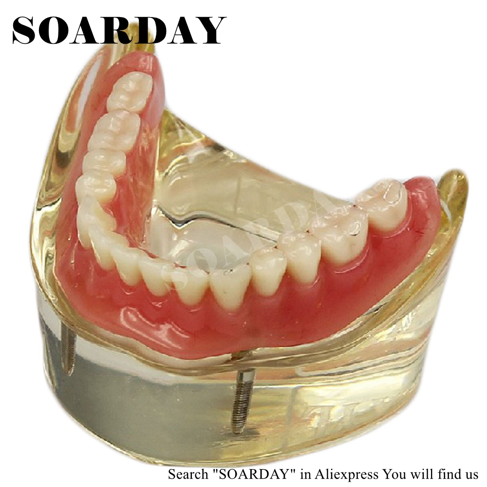 SOARDAY Dental Lower Removable Overdenture Inferior with 2 implants Demonstration Teeth Anatomy Pathology Dentistry Tooth Model dental pathology model anatomical model teeth model dental caries periodontal disease demonstration model gasen den050