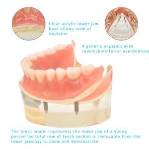 Image 5 - 歯科インプラント歯モデルリムーバブルインテリアデザイン下顎下の歯モデルのためのインプラントで下顎歯教育研究