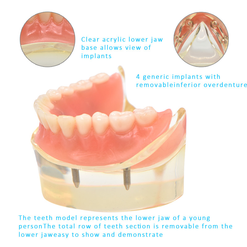 mandibulares com implante de dente inferior estudo ensino modelo dentes 05