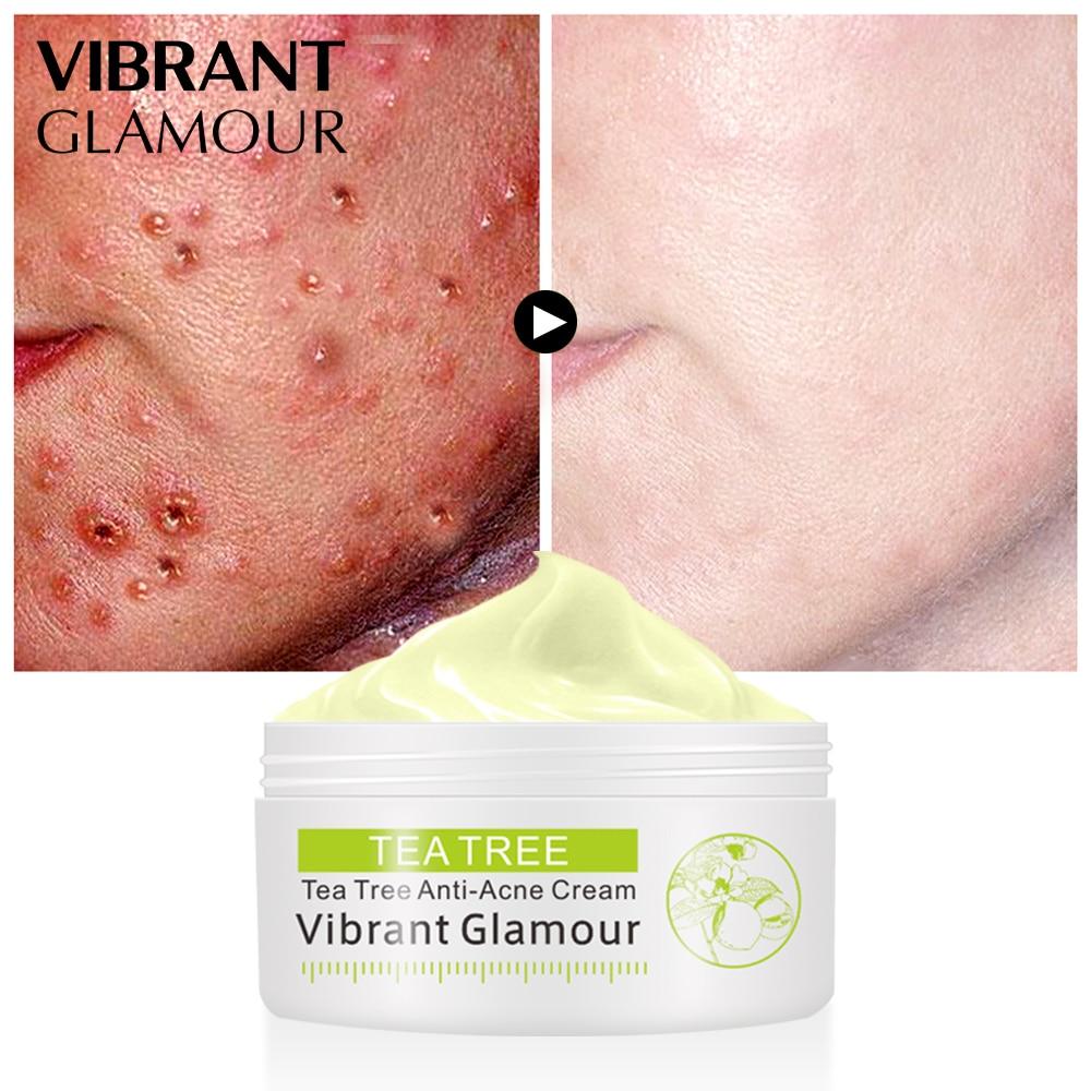 VIBRANT GLAMOUR Tea Tree Anti-acne Cream Acne Scar Face Cream Shrink Pores Facial Eliminates Acnes Cream Oil control Repair Spot