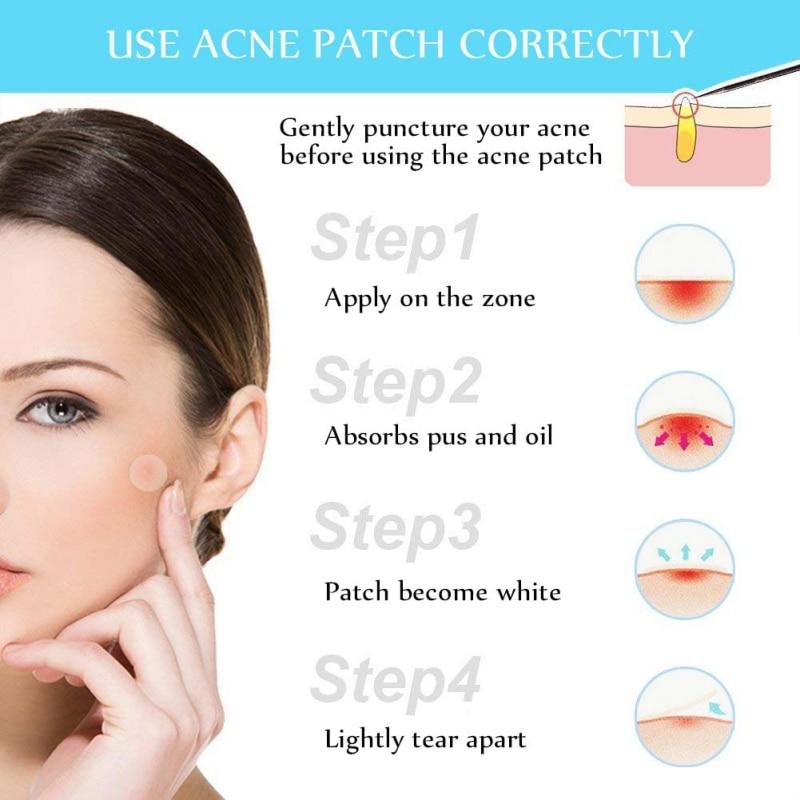 Beauty Acne Patch Set 24 Pcs Narvay Com
