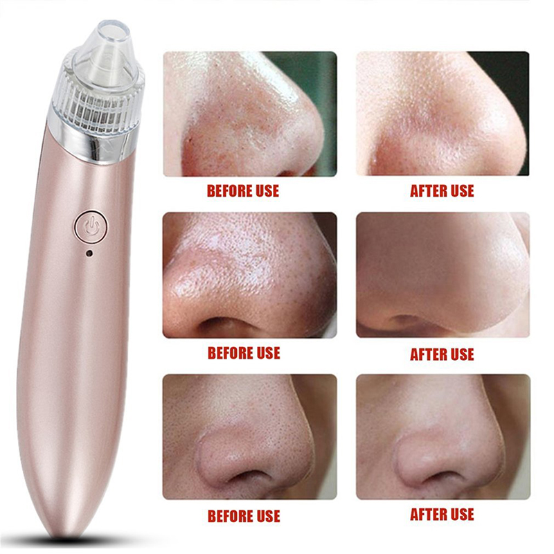 Electric Pore Cleaner Acne Blackhead Remover Facial Skin Care Device Pore Vacuum Extraction USB Comedo Suction Cleaner xpreen electric pore vacuum cleanser