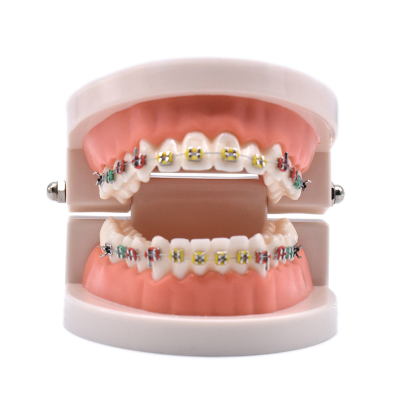 Dental Orthodontic Treatment Model With Ortho Metal Ceramic Bracket Arch Wire Buccal Tube Ligature Ties Dental Tools Dentist Lab