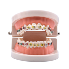 Dental Orthodontic Treatment Model With Ortho Metal Ceramic Bracket Arch Wire Buccal Tube Ligature Ties Tools Dentist Lab