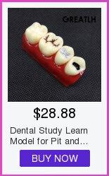 Modelo padrão dental com dentes removíveis #4004