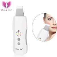 https://ae01.alicdn.com/kf/HTB1tjBChjihSKJjy0Ffq6zGzFXan/Beauty-Star-Ultrasonic-Skin-Scrubber-Anion-Ultrasonic-Skin-Peeling-Face-Pore.jpg