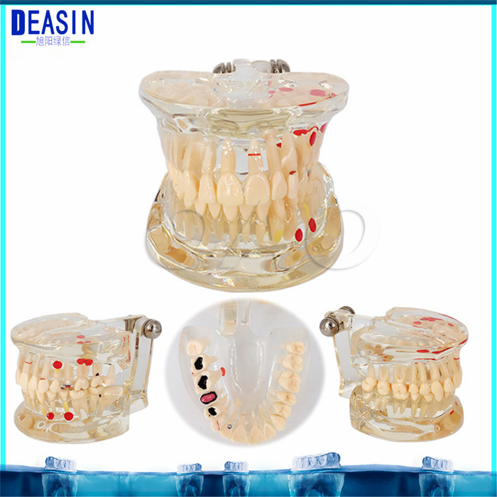 Dental Implant Teeth Dental Pathological Teeth Implant Model Teaching Teeth Model & Restoration Bridge Tooth soarday 1 piece 2 times dental pathological model implant bridge crown treatment oral teaching model
