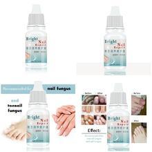 10 мл средство для лечения грибков ногтей против грибка, удаление онихомикоза, уход за ногтями, восстанавливающая жидкость для ногтей 789