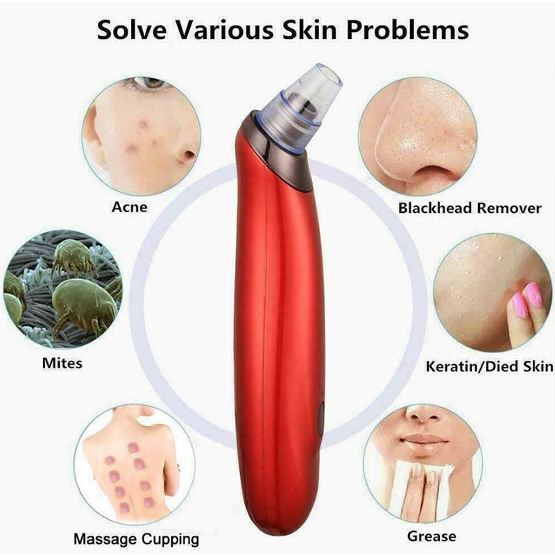 Купить с кэшбэком Usb Rechargeable Extractor Tool Kit Instrument Blackhead Cleansing Remover Suction Instrument
