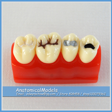 ED-DH1310 Pit and Fissure Sealing Demonstration Model , Medical Science Educational Dental Teaching Models