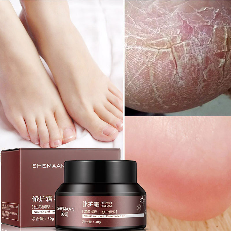 30g Vaseline Prevent Skin Crack Repair Cream Dry Skin Moisturizing Crack Heel Cream Deep Nourishing Creams Treatment Cracking