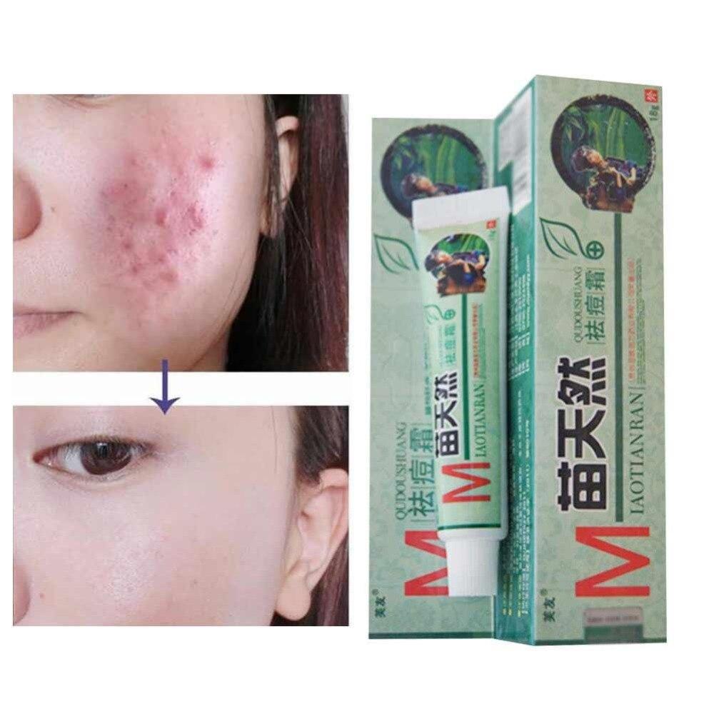 1 Pc Original Remove Acne Cream Germicidal Remove Mite Moisturizeing Skin Cream You Really Deserve It Free Shiping