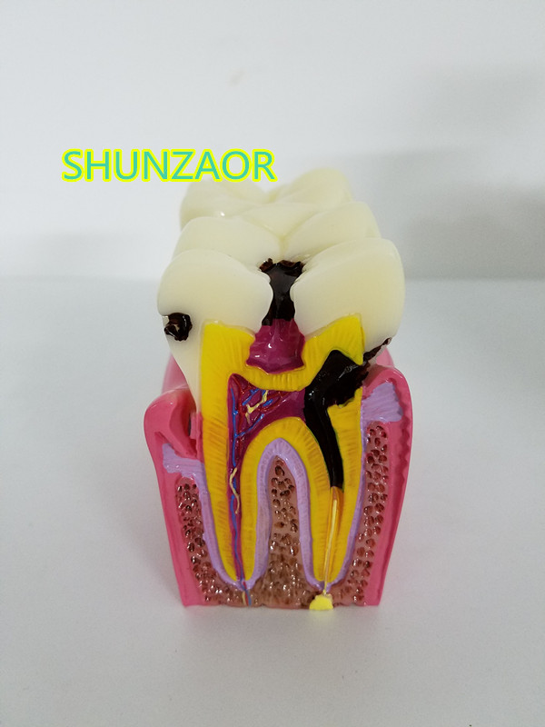 SHUNZAOR High Quality Denture Teeth model 6X, caries comparison model, tooth decay model,Dentist for Medical Science Teaching new original pws6400f s hitech hmi mono stn lcd 3 3 240 240 1com 1year warranty
