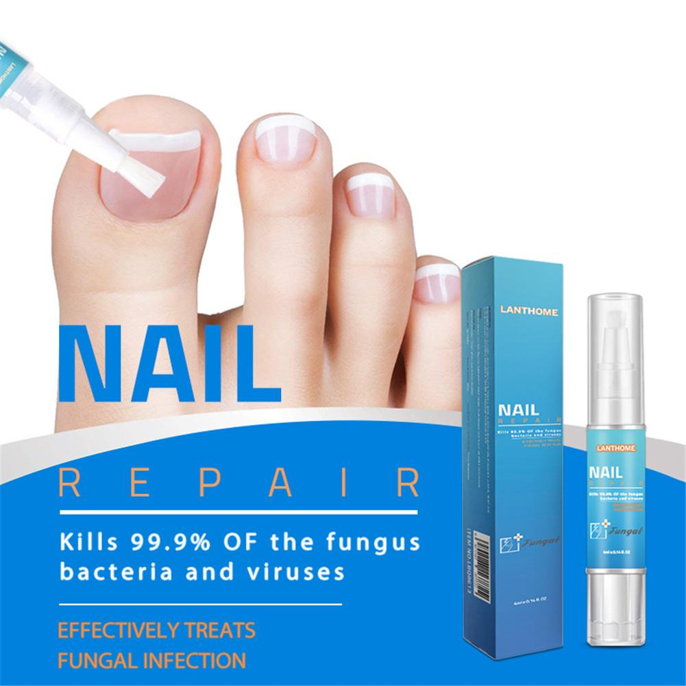 1Pc Fungal Nail Treatment Pen Onychomycosis Paronychia Infection Herbal Toe Finger Nails Health Beauty Accessories