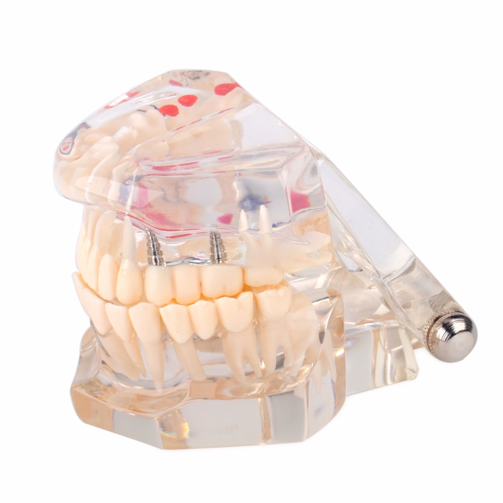 KUDOST Dental Implant Study Tooth Transparent Adult Pathologies Demonstration Teeth Model Dental Lab Equipment Dentist Teaching demonstration dental study tooth transparent adult children pathological teeth model lab equipment dentist teaching