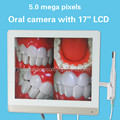 5.0 mega pixels 17inch LCD monitor with usb intra oral camera all in one machine Dental endoscope