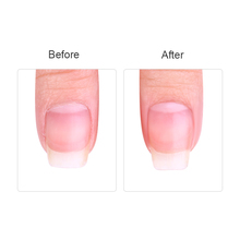 Nail Dead Skin Remover Treatment