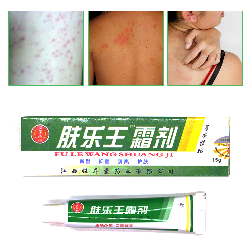 Chinese Herbal Skin Topical Antipruritic Ointment Cream Analgesic Balm Ointment Psoriasis Cream Body Massage Patches   D05901